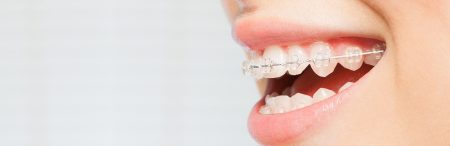 Walton & Maready Orthodontics common treatments