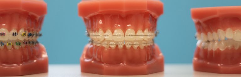 Walton & Maready Orthodontics Blog